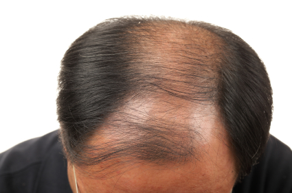 Endosterol Hair Loss